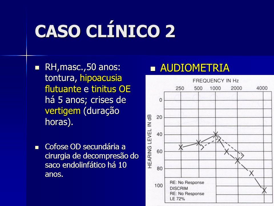 CASO CLÍNICO 2 RH,masc.,50 anos: tontura, hipoacusia flutuante e tinitus OE há 5 anos; crises de vertigem (duração horas). RH,masc.,50 anos: tontura,