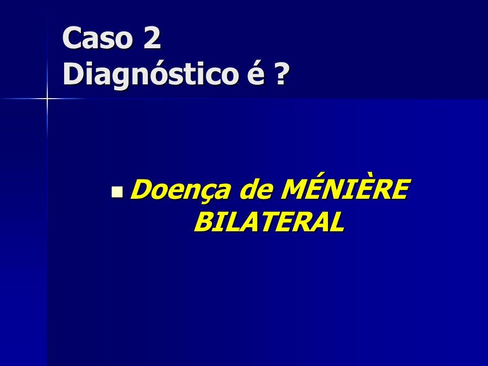 Doença de MÉNIÈRE BILATERAL Doença de MÉNIÈRE BILATERAL