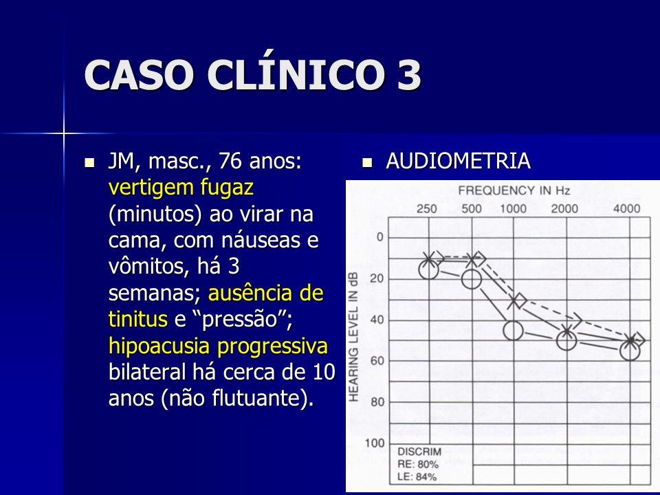 CASO CLÍNICO 3 JM, masc., 76 anos: vertigem fugaz (minutos) ao virar na cama, com náuseas e vômitos, há 3 semanas; ausência de tinitus e pressão; hipo