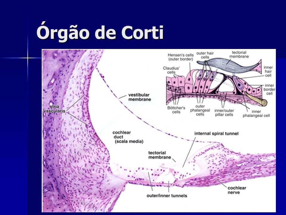 D.MÉNIÈRE: Patofisiologia Hidropsia endolinfática(=hipertensão) leva a distorção da membrana de Reissner no labirinto membranoso Hidropsia endolinfática(=hipertensão) leva a distorção da membrana de Reissner no labirinto membranoso