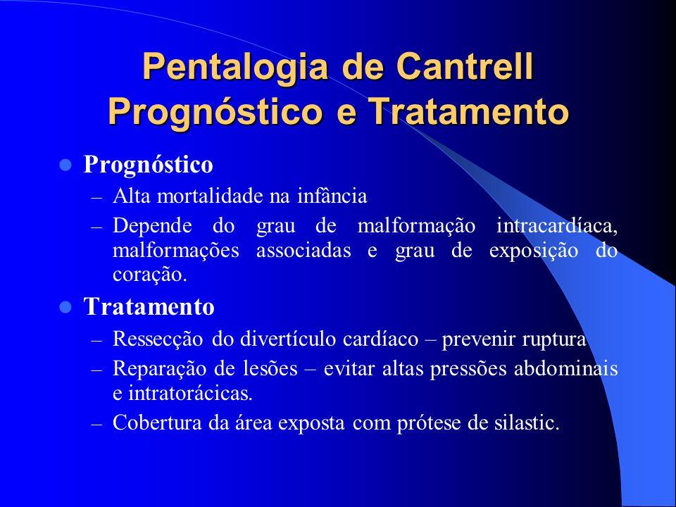 Pentalogia de Cantrell Prognóstico e Tratamento Prognóstico – Alta mortalidade na infância – Depende do grau de malformação intracardíaca, malformaçõe