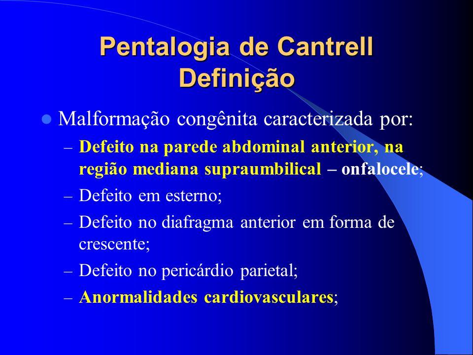 Pentalogia de Cantrell Definição Malformação congênita caracterizada por: – Defeito na parede abdominal anterior, na região mediana supraumbilical – o