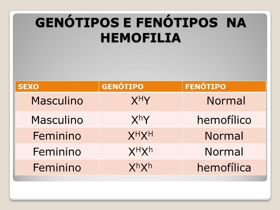 GENÓTIPOS E FENÓTIPOS NA HEMOFILIA SEXOGENÓTIPOFENÓTIPO MasculinoXHYXHY Normal MasculinoXhYXhYhemofílico FemininoXHXHXHXH Normal FemininoXHXhXHXh Norm