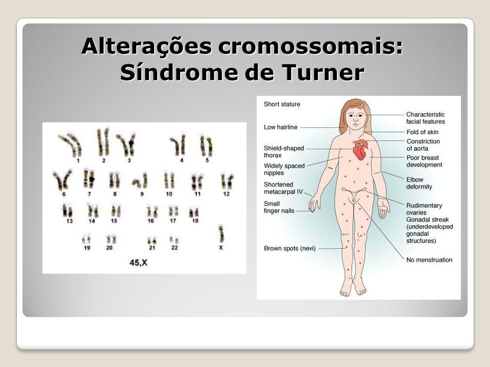 Alterações cromossomais: Síndrome de Turner