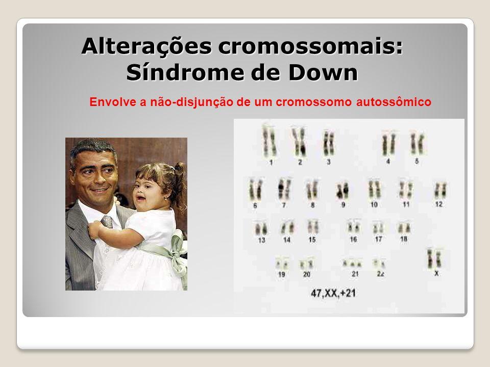 Alterações cromossomais: Síndrome de Down Envolve a não-disjunção de um cromossomo autossômico