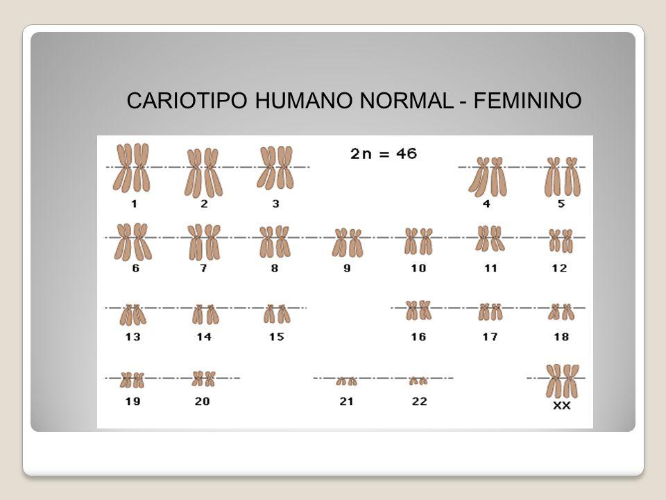 Cariótipo masculino anormal