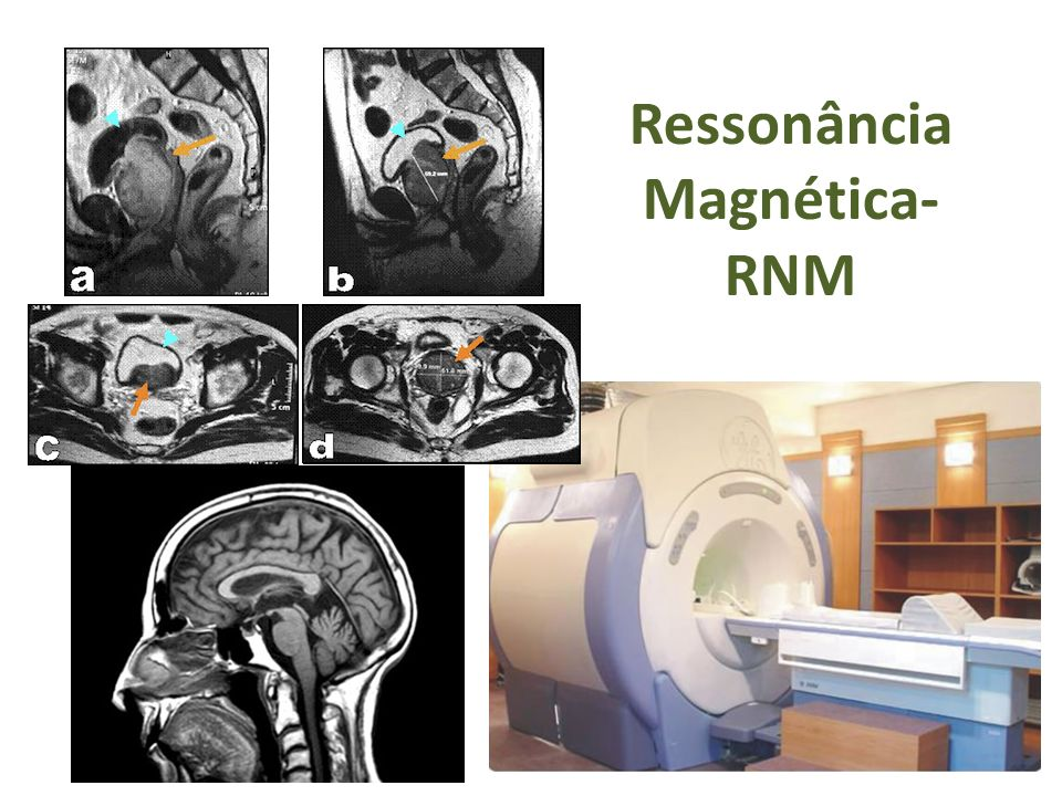 Ressonância Magnética- RNM