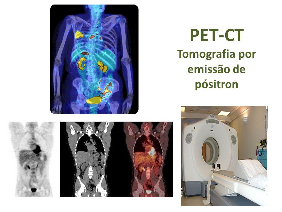 PET-CT Tomografia por emissão de pósitron