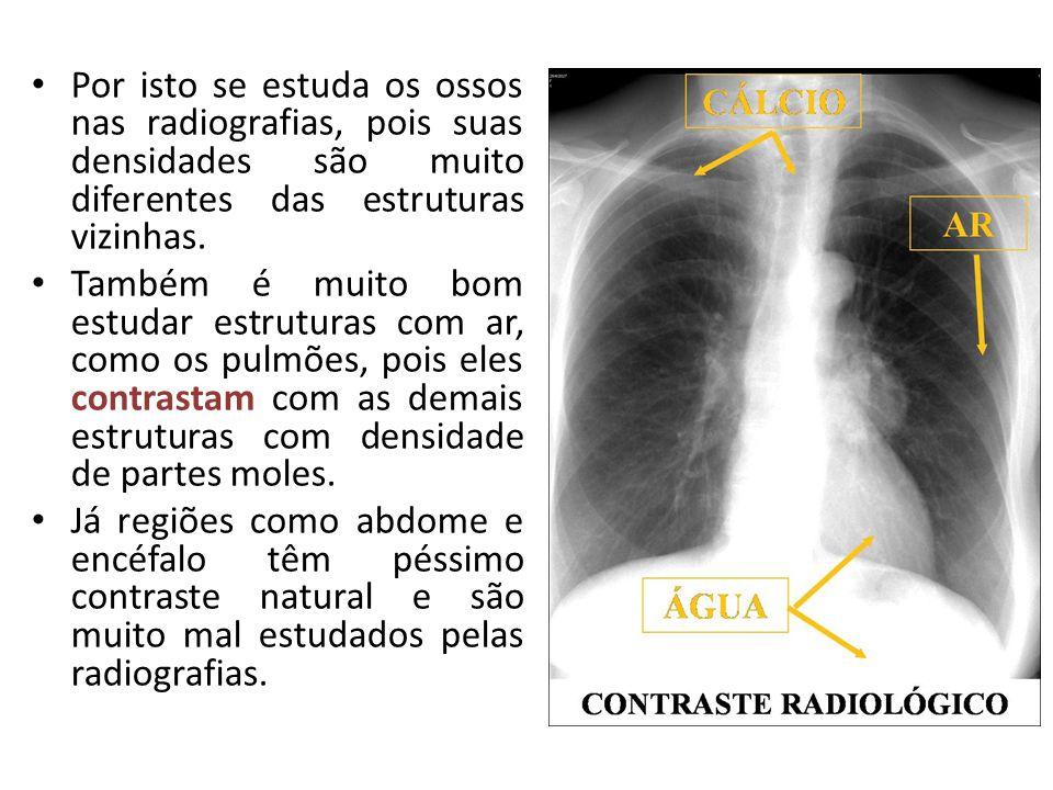 Por isto se estuda os ossos nas radiografias, pois suas densidades são muito diferentes das estruturas vizinhas. Também é muito bom estudar estruturas