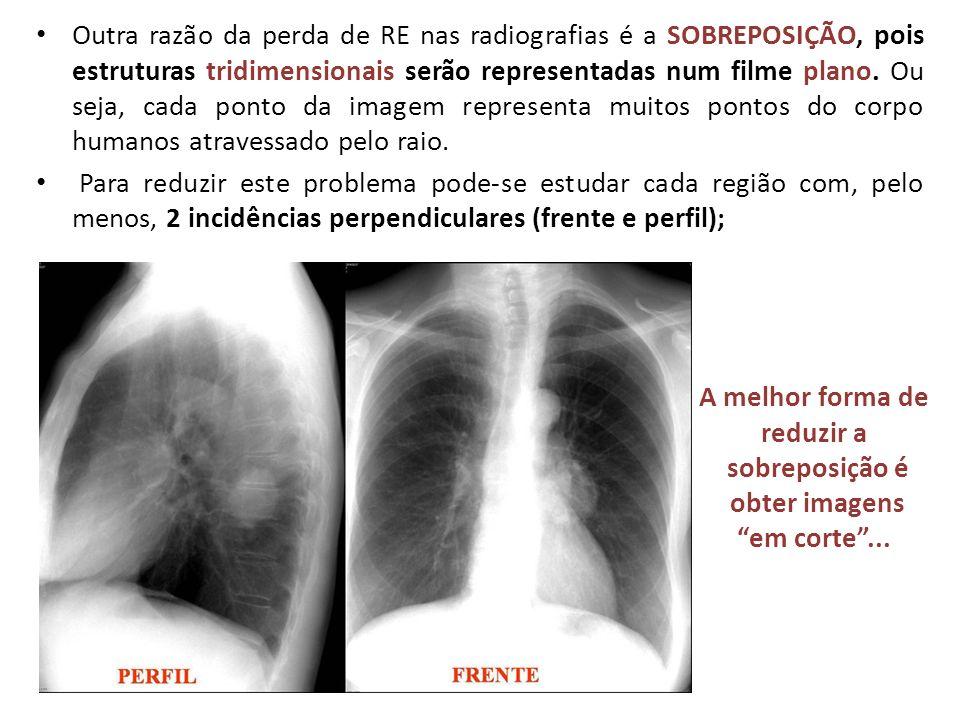 Outra razão da perda de RE nas radiografias é a SOBREPOSIÇÃO, pois estruturas tridimensionais serão representadas num filme plano. Ou seja, cada ponto