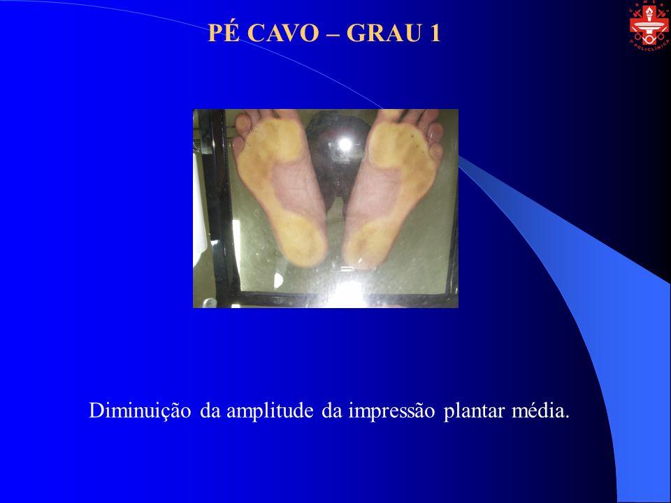 PÉ CAVO – GRAU 2 Desaparece por completo a impressão do plantar média.