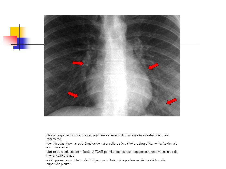 Nas radiografias do tórax os vasos (artérias e veias pulmonares) são as estruturas mais facilmente identificadas. Apenas os brônquios de maior calibre
