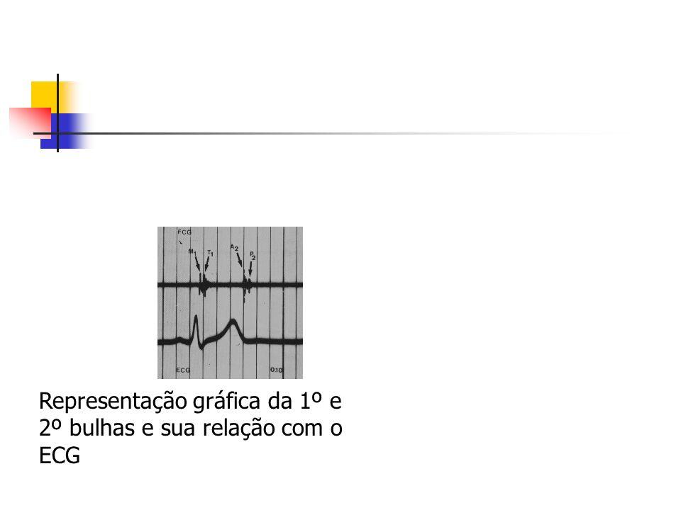 Representação gráfica da 1º e 2º bulhas e sua relação com o ECG