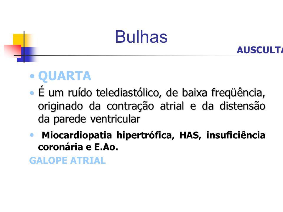 Bulhas QUARTA É um ruído telediastólico, de baixa freqüência, originado da contração atrial e da distensão da parede ventricularÉ um ruído telediastól