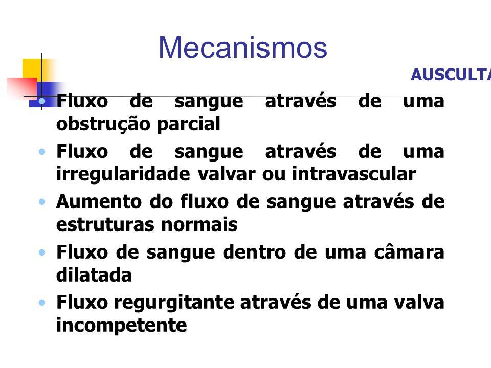 Mecanismos Fluxo de sangue através de uma obstrução parcial Fluxo de sangue através de uma irregularidade valvar ou intravascular Aumento do fluxo de