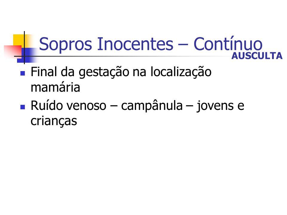 Sopros Inocentes – Contínuo Final da gestação na localização mamária Ruído venoso – campânula – jovens e crianças AUSCULTA