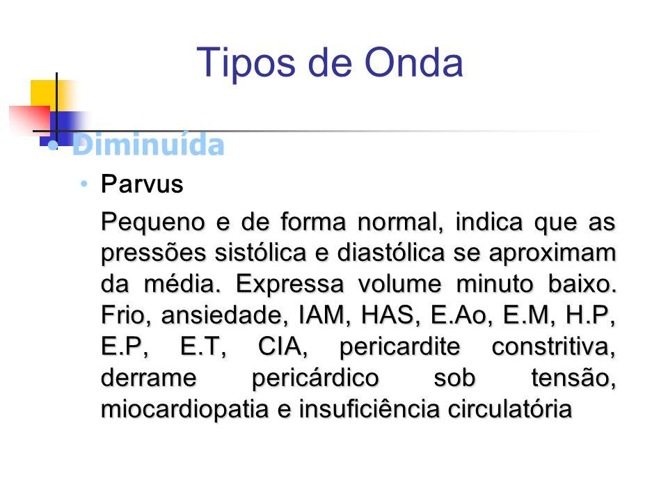 Tipos de Onda Diminuída Parvus Pequeno e de forma normal, indica que as pressões sistólica e diastólica se aproximam da média. Expressa volume minuto