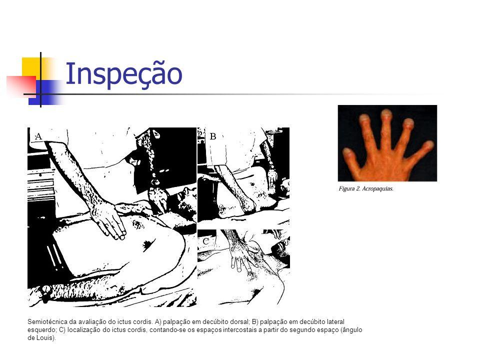 Inspeção Semiotécnica da avaliação do ictus cordis. A) palpação em decúbito dorsal; B) palpação em decúbito lateral esquerdo; C) localização do ictus