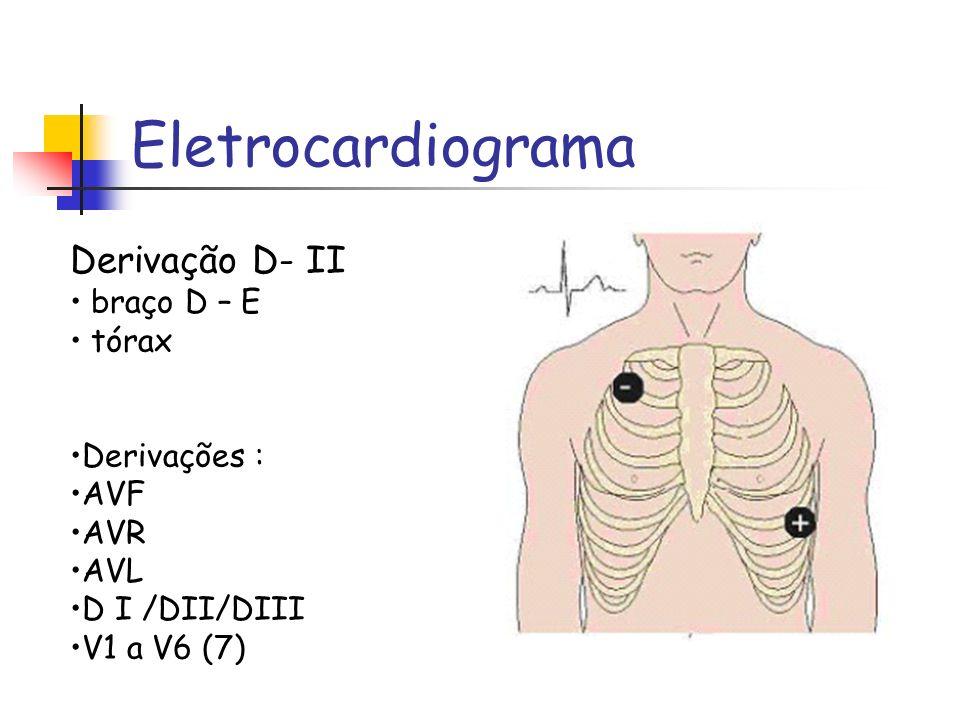 Eletrocardiograma Derivação D- II braço D – E tórax Derivações : AVF AVR AVL D I /DII/DIII V1 a V6 (7)