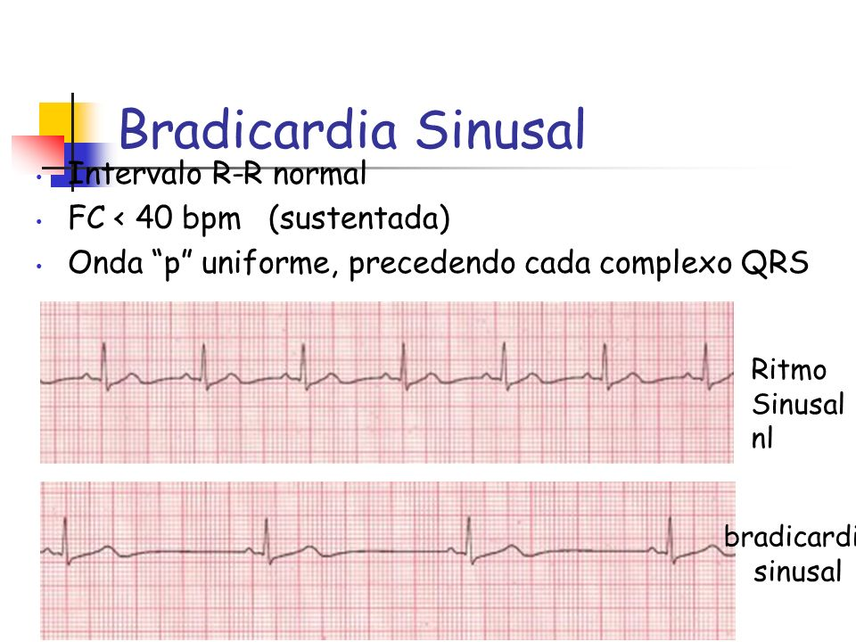 Bradicardia Sinusal Intervalo R-R normal FC < 40 bpm (sustentada) Onda p uniforme, precedendo cada complexo QRS Ritmo Sinusal nl bradicardia sinusal