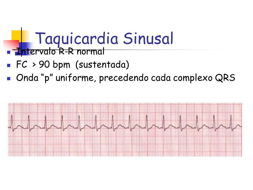 Taquicardia Sinusal Intervalo R-R normal FC > 90 bpm (sustentada) Onda p uniforme, precedendo cada complexo QRS