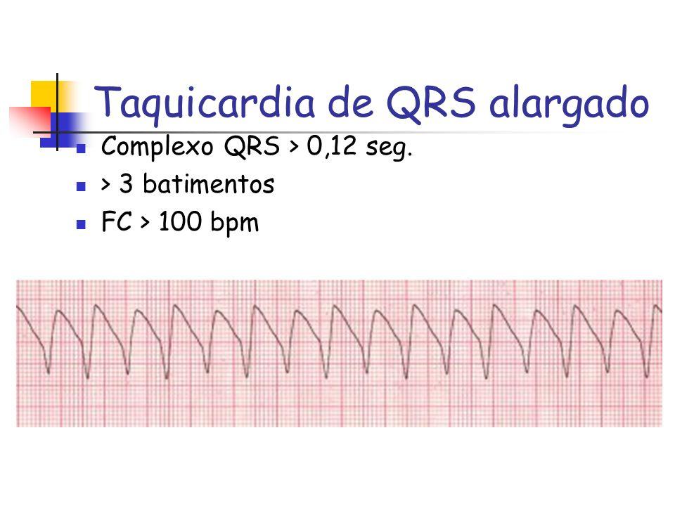 Taquicardia de QRS alargado Complexo QRS > 0,12 seg. > 3 batimentos FC > 100 bpm