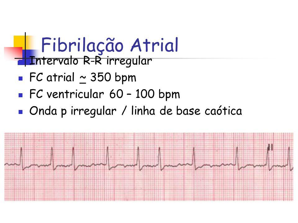 Fibrilação Atrial Intervalo R-R irregular FC atrial ~ 350 bpm FC ventricular 60 – 100 bpm Onda p irregular / linha de base caótica