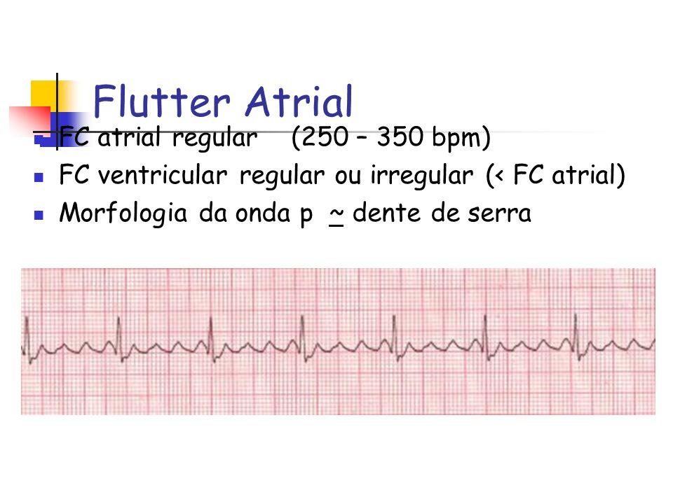 Flutter Atrial FC atrial regular (250 – 350 bpm) FC ventricular regular ou irregular (< FC atrial) Morfologia da onda p ~ dente de serra