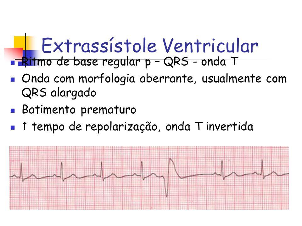 Extrassístole Ventricular Ritmo de base regular p – QRS - onda T Onda com morfologia aberrante, usualmente com QRS alargado Batimento prematuro tempo