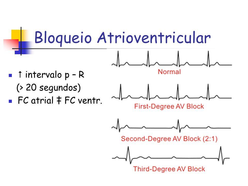 Bloqueio Atrioventricular intervalo p – R (> 20 segundos) FC atrial FC ventr.