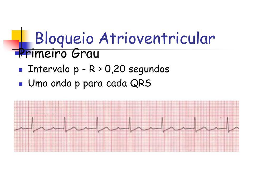 Bloqueio Atrioventricular Primeiro Grau Intervalo p - R > 0,20 segundos Uma onda p para cada QRS