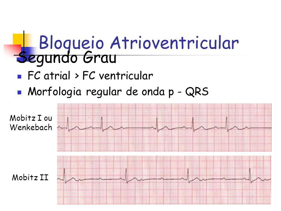 Bloqueio Atrioventricular Segundo Grau FC atrial > FC ventricular Morfologia regular de onda p - QRS Mobitz I ou Wenkebach Mobitz II