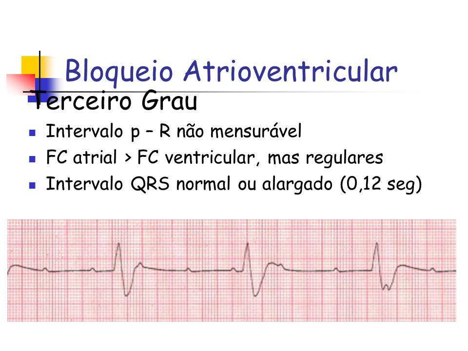 Bloqueio Atrioventricular Terceiro Grau Intervalo p – R não mensurável FC atrial > FC ventricular, mas regulares Intervalo QRS normal ou alargado (0,1
