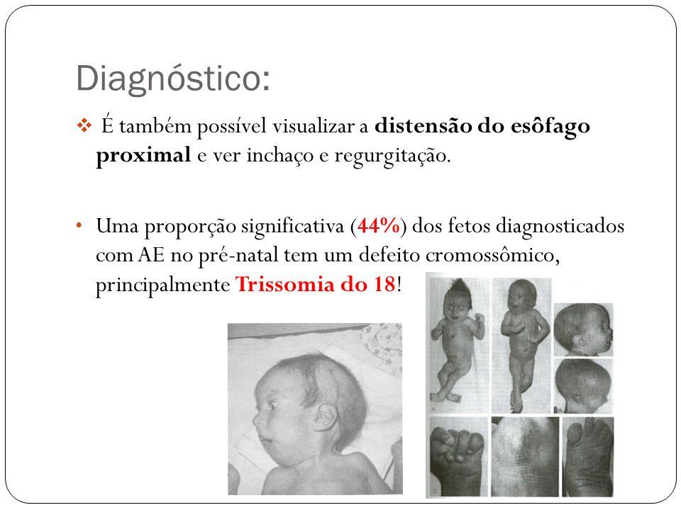 Diagnóstico: Diagnóstico perinatal: Toda criança com história materna de polidrâmnio deveria ter sonda nasogástrica passada ao nascimento para excluir a possibilidade de AE.