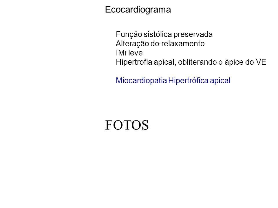 Ecocardiograma Função sistólica preservada Alteração do relaxamento IMi leve Hipertrofia apical, obliterando o ápice do VE Miocardiopatia Hipertrófica