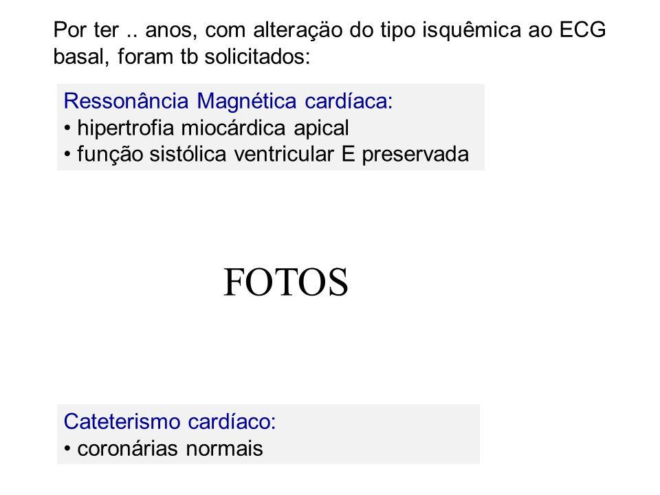 Ressonância Magnética cardíaca: hipertrofia miocárdica apical função sistólica ventricular E preservada Cateterismo cardíaco: coronárias normais Por t