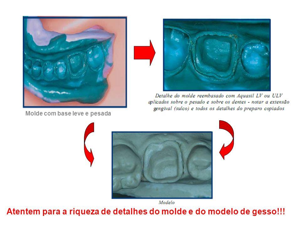 Atentem para a riqueza de detalhes do molde e do modelo de gesso!!! Molde com base leve e pesada