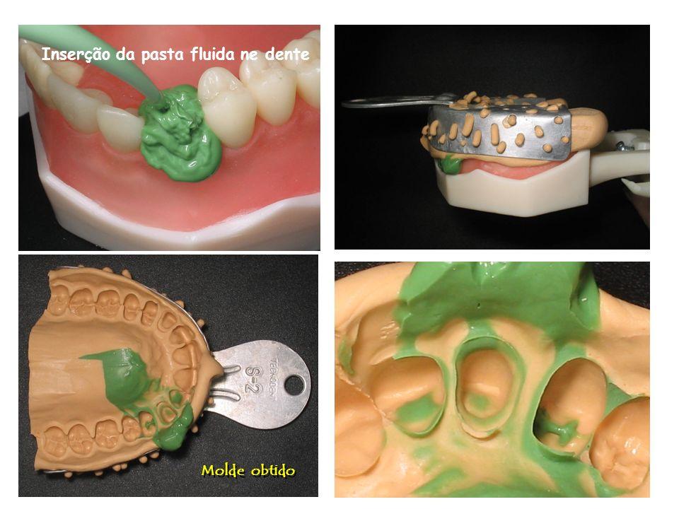 Molde obtido Inserção da pasta fluida ne dente