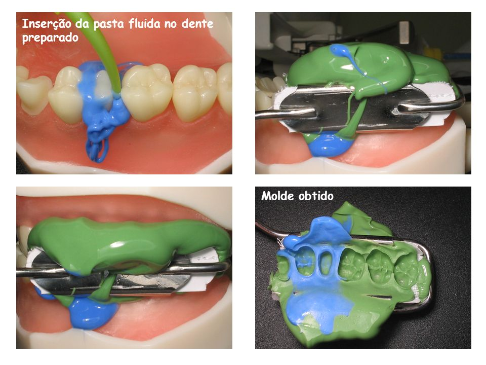 Inserção da pasta fluida no dente preparado Molde obtido