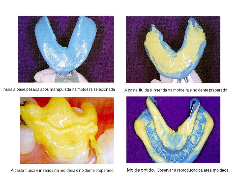 Insira a base pesada após manipulada na moldeira selecionada A pasta fluida é inserida na moldeira e no dente preparado Molde obtido. Observar a repro