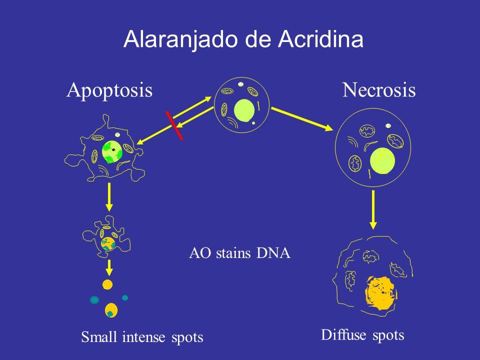 ApoptosisNecrosis Alaranjado de Acridina AO stains DNA Small intense spots Diffuse spots