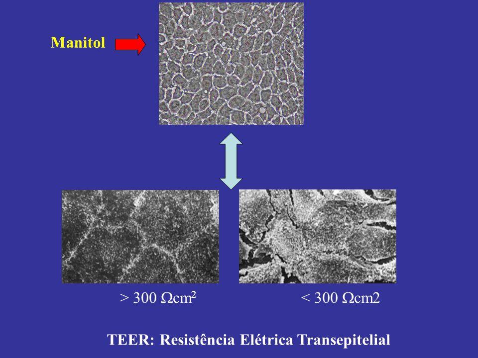 TEER: Resistência Elétrica Transepitelial > 300 cm 2 < 300 cm2 Manitol