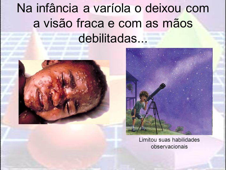 Na infância a varíola o deixou com a visão fraca e com as mãos debilitadas... Limitou suas habilidades observacionais