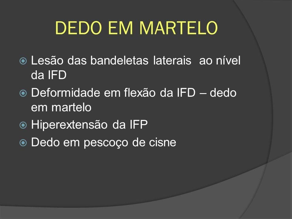 DEDO EM MARTELO Lesão das bandeletas laterais ao nível da IFD Deformidade em flexão da IFD – dedo em martelo Hiperextensão da IFP Dedo em pescoço de c