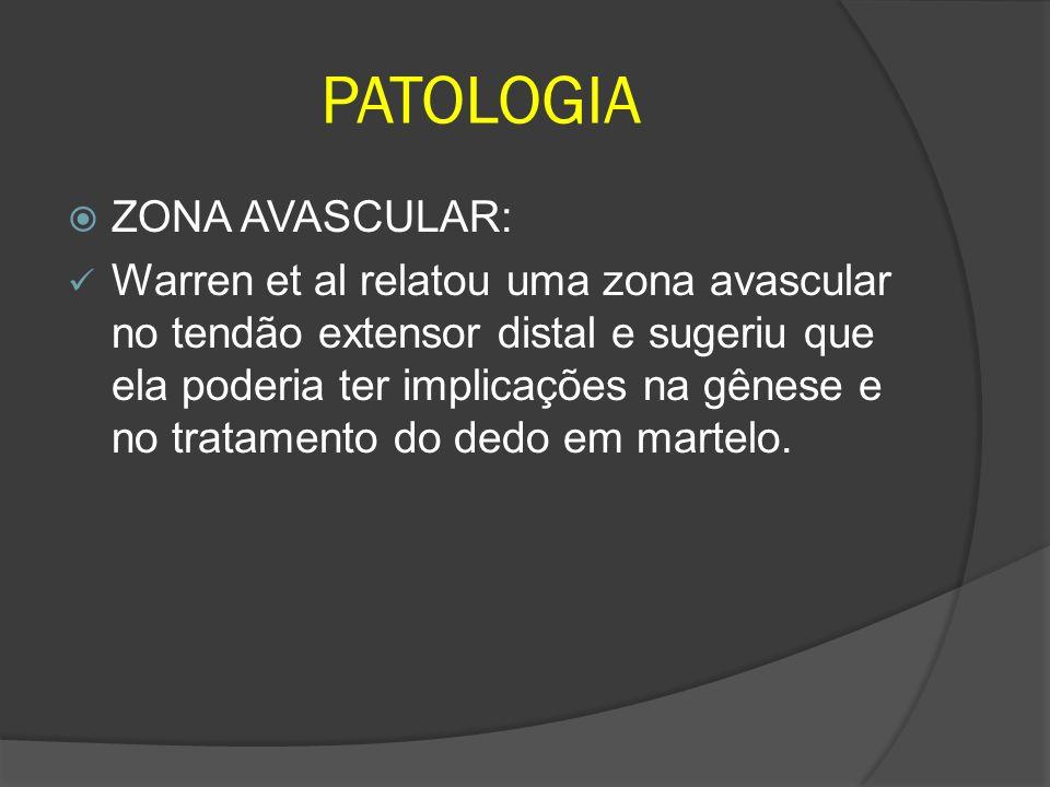 PATOLOGIA ZONA AVASCULAR: Warren et al relatou uma zona avascular no tendão extensor distal e sugeriu que ela poderia ter implicações na gênese e no t