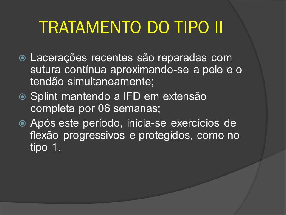 TRATAMENTO DO TIPO II Lacerações recentes são reparadas com sutura contínua aproximando-se a pele e o tendão simultaneamente; Splint mantendo a IFD em