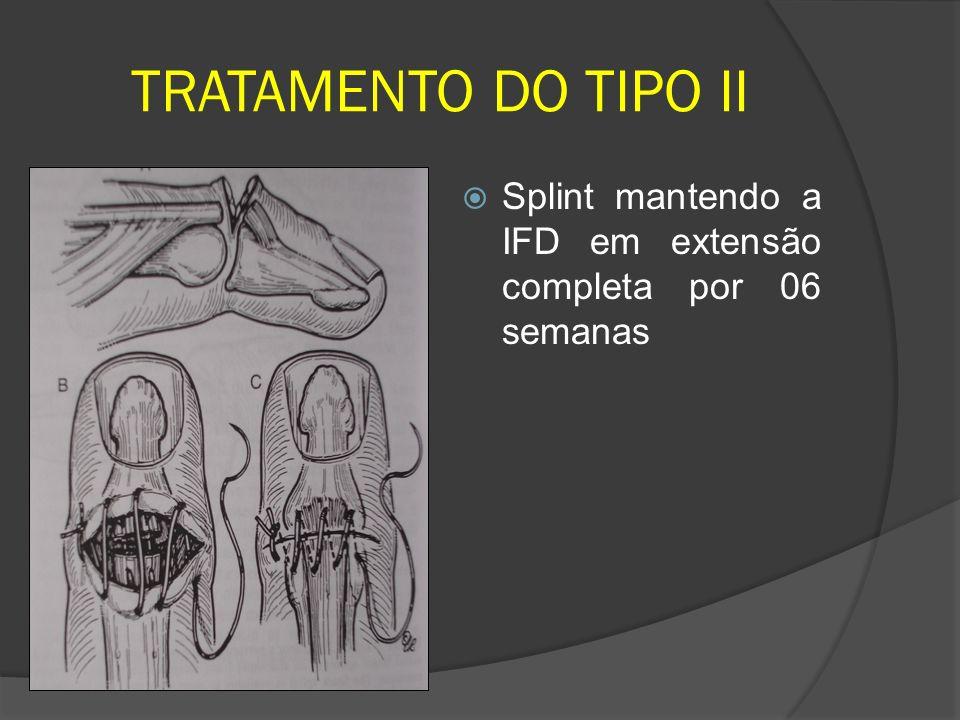 TRATAMENTO DO TIPO II Splint mantendo a IFD em extensão completa por 06 semanas