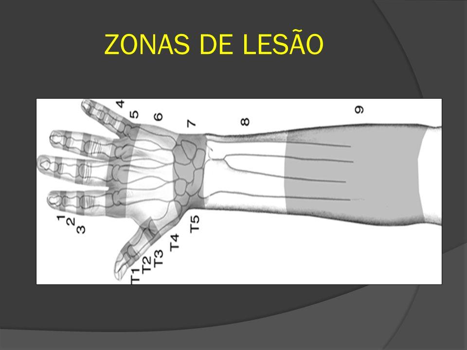 ZONA IX – ANTEBRAÇO PROXIMAL Lesão do ventre muscular Ferimentos penetrantes – faca, vidro Perda de função – neurológica, muscular ou ambas O reparo é feito com múltiplas suturas em oito com fio de poligalactina (Vicryl – Ethicon) Enxertos de tendão – Palmar longo e extensor dos dedos do pé