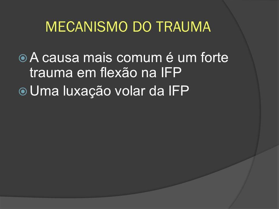 MECANISMO DO TRAUMA A causa mais comum é um forte trauma em flexão na IFP Uma luxação volar da IFP