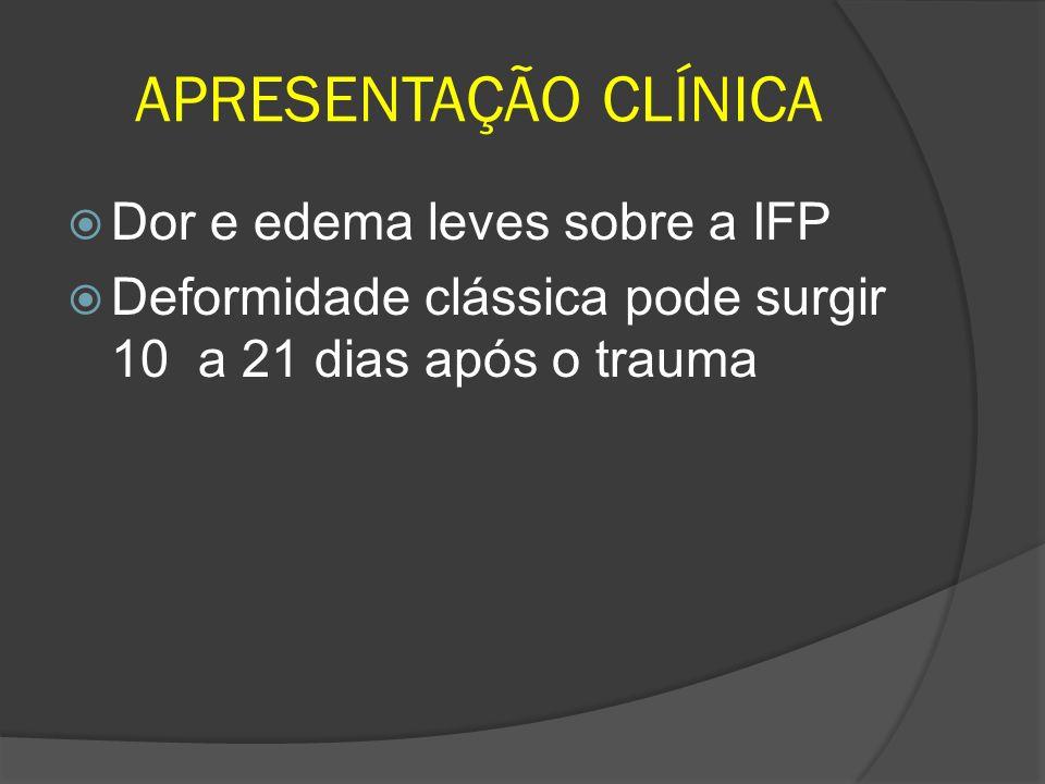 APRESENTAÇÃO CLÍNICA Dor e edema leves sobre a IFP Deformidade clássica pode surgir 10 a 21 dias após o trauma